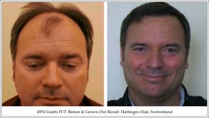 Hair Transplant results Hattingen Hair Transplantation