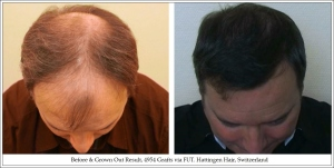 Before & Grown Out Result, 4954 Grafts via FUT. Hattingen Hair, Switzerland