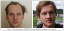 Hair Transplant Results. Hattingen Hair Transplantation (10)