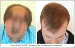 Hair Transplant Results. Hattingen Hair Transplantation (11)