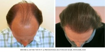 Hair Transplant Results. Hattingen Hair Transplantation (13)
