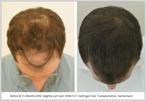 NW5 Diffused Hair Loss Pattern Treated with 3994 FUT. Hattingen Hair Transplantation