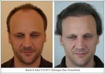 Hair Transplant Results. Hattingen Hair Transplantation (6)