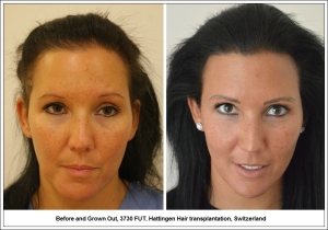 Before and Grown Out, 3730 FUT. Hattingen Hair transplantation, Switzerland 1