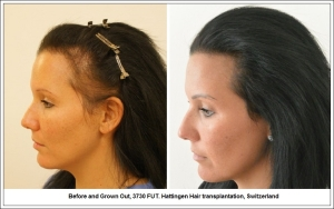 Before and Grown Out, 3730 FUT. Hattingen Hair transplantation, Switzerland 2