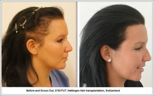 Before and Grown Out, 3730 FUT. Hattingen Hair transplantation, Switzerland 3