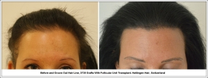 Before and Grown Out Hair Line, 3730 Grafts With Follicular Unit Transplant. Hattingen Hair, Switzerland