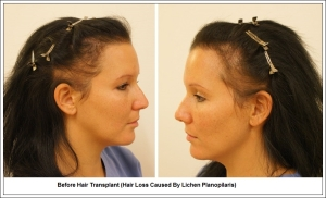 Before Hair Transplant (Hair Loss Caused By Lichen Planopilaris) 1