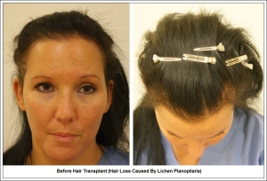 Before Hair Transplant (Hair Loss Caused By Lichen Planopilaris)