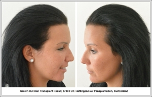 Grown Out Hair Transplant Result, 3730 FUT. Hattingen Hair transplantation, Switzerland